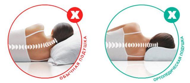 Отличие ортопедической подушки от обычной