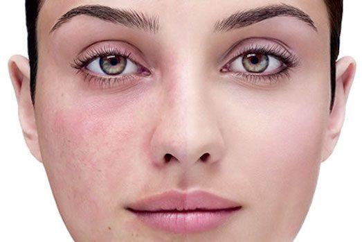 Вакуумная чистка лица не рекомендуется при куперозе