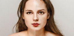 Крем от пигментации на лице – какой лучше выбрать