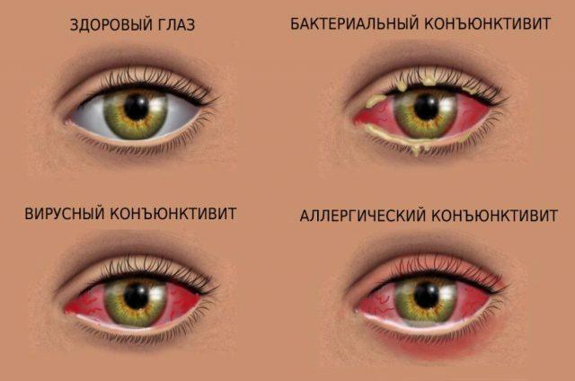 Виды конъюнктивита глаз