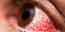 Капли от покраснения глаз